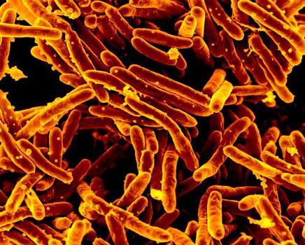 Tuberculosis 18138_sm